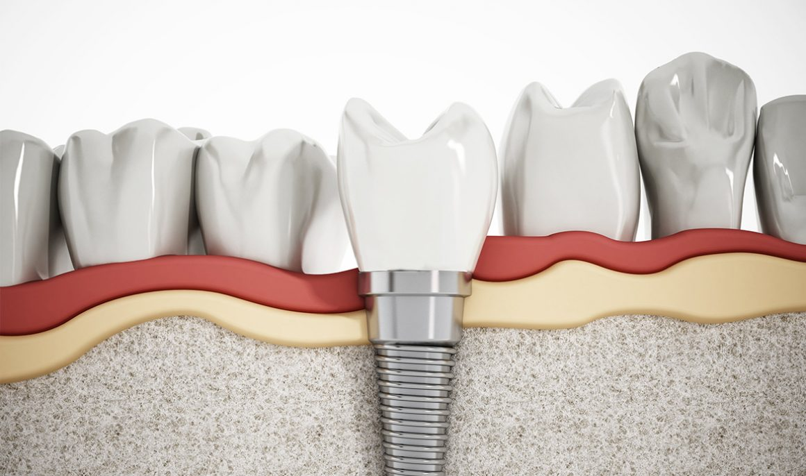 All-on-4 technique: dental implants