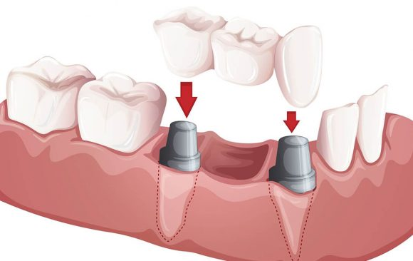 Dental crowns, dental implants and bridges in Costa Rica