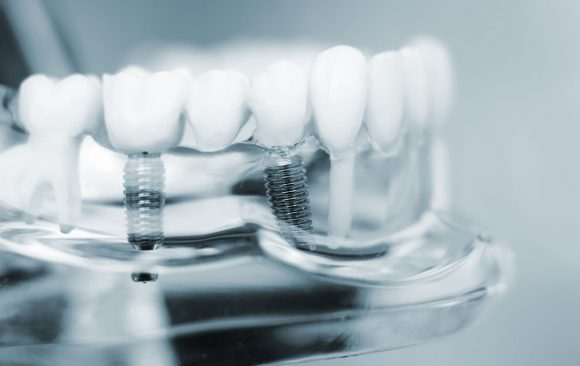 Are you looking for dental implant treatments or (all on 6) in Santa Ana or Escazu?