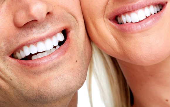 Teeth Whitening: a new smile in a short time