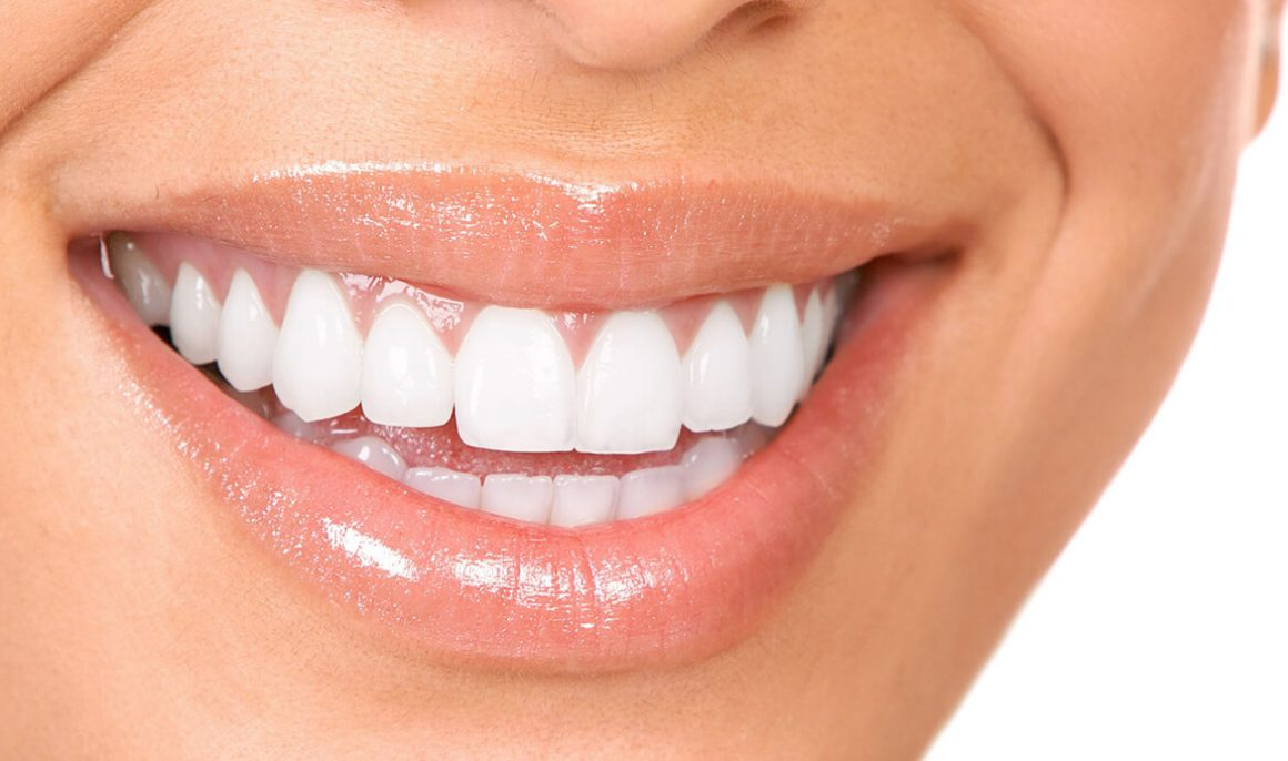 Complete tooth restoration: we are the best option